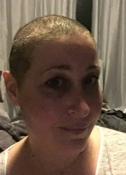 bald ellie